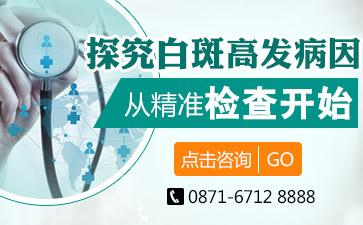 昆明治疗白斑最专业的医院